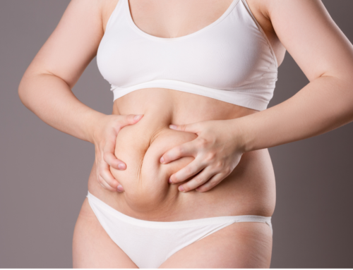 What You Should Know Before an Overland Park Tummy Tuck
