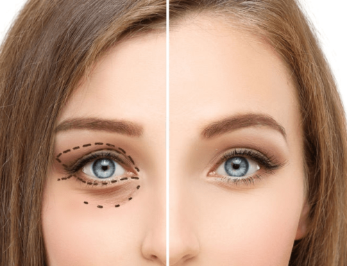 Four Reasons Why an Eyelid Lift May Be For You
