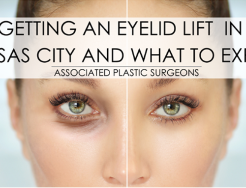 Getting an Eyelid Lift in Kansas City and What to Expect