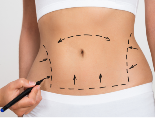 Liposuction: What You Should Know