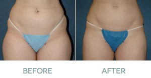 Before and After Liposuction in Kansas City